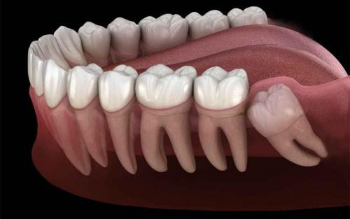 Remove Food From Extracted Wisdom Teeth Sockets Kipkis